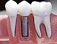 norcross Dental Implants