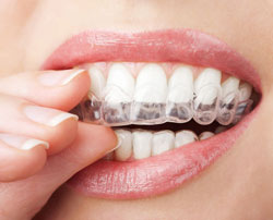 Norcross Invisalign Treatment